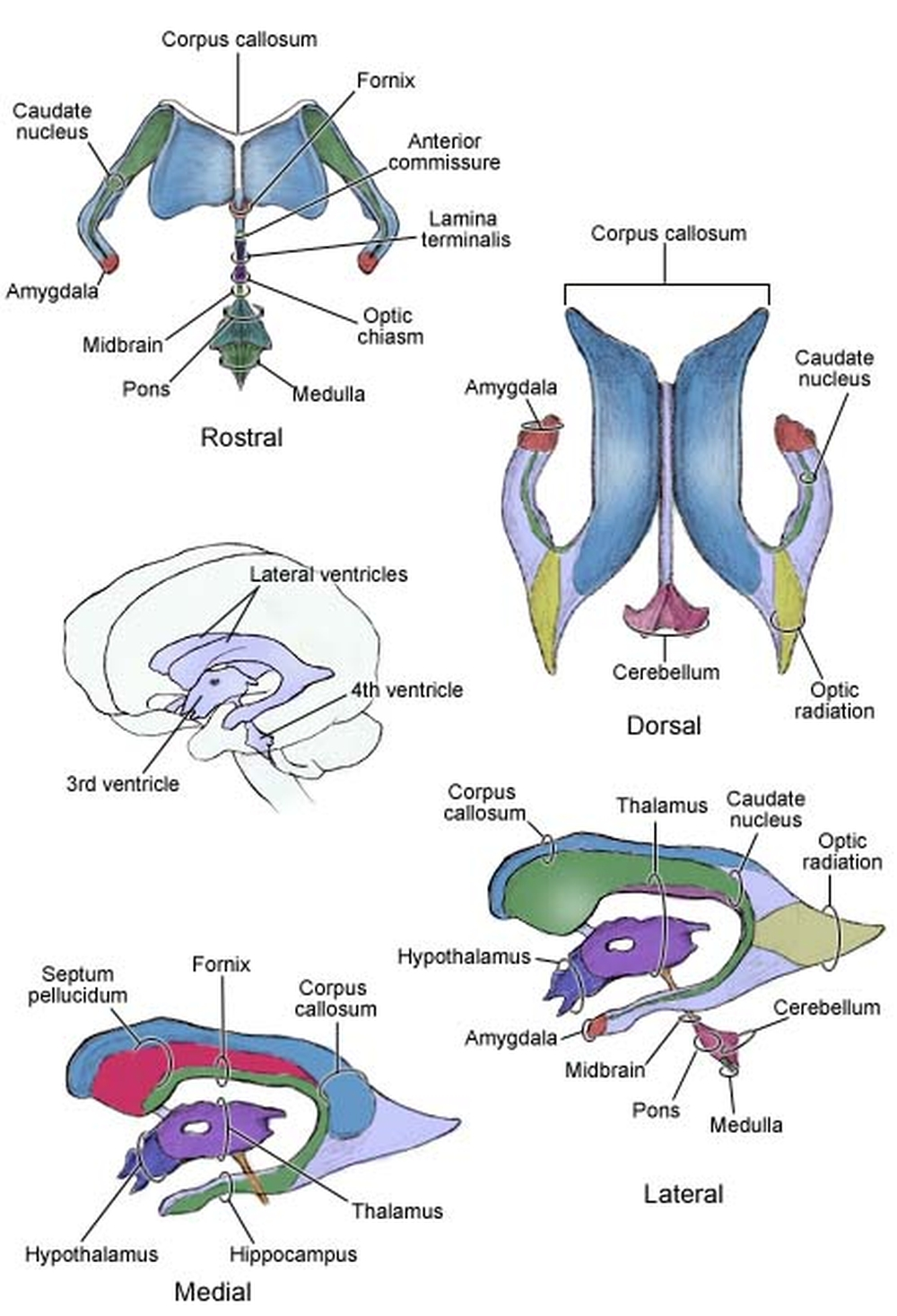 sistema ventricolare cerebrale